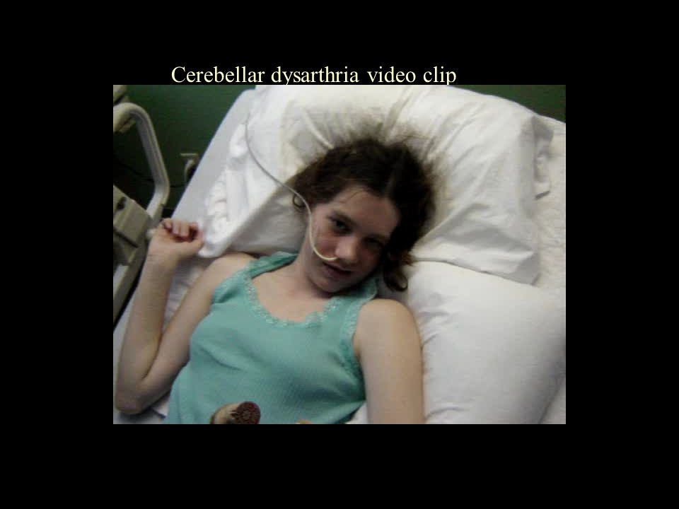 Cerebellar dysarthria video clip