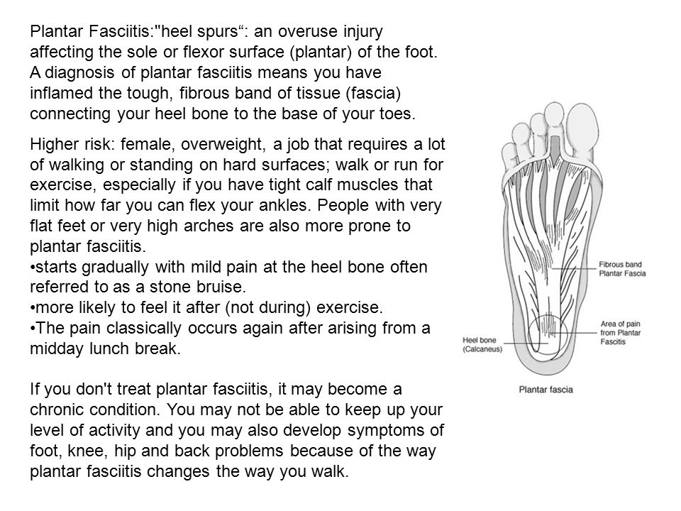 Plantar Fasciitis: heel spurs : an overuse injury affecting the sole or flexor surface (plantar) of the foot. A diagnosis of plantar fasciitis means you have inflamed the tough, fibrous band of tissue (fascia) connecting your heel bone to the base of your toes.