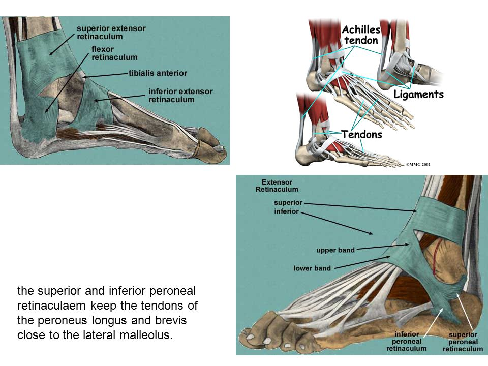 the superior and inferior peroneal retinaculaem keep the tendons of the peroneus longus and brevis close to the lateral malleolus.