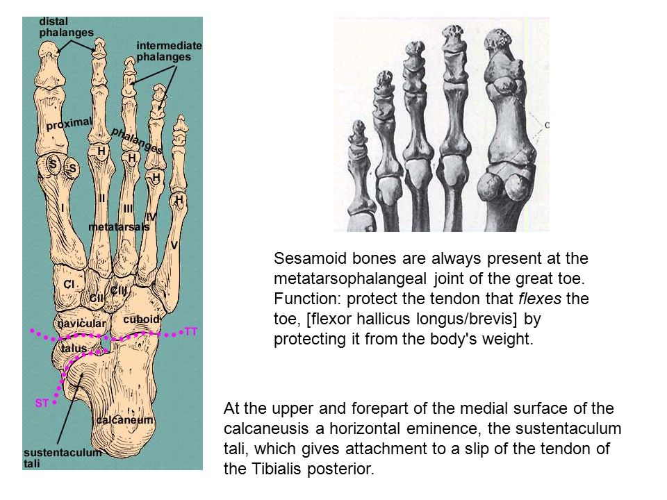 Sesamoid bones are always present at the metatarsophalangeal joint of the great toe. Function: protect the tendon that flexes the toe, [flexor hallicus longus/brevis] by protecting it from the body s weight.
