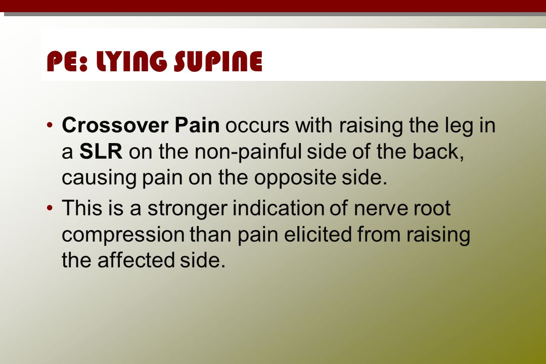 PE: LYING SUPINE Crossover Pain occurs with raising the leg in a SLR on the non-painful side of the back, causing pain on the opposite side.