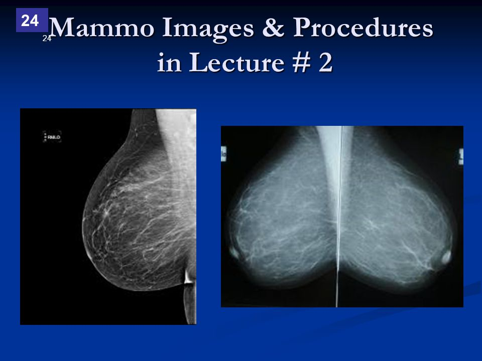 Mammo Images & Procedures in Lecture # 2