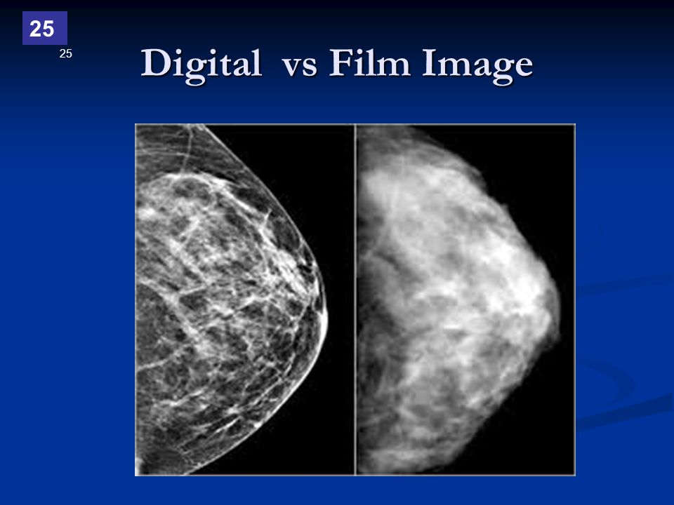 Digital vs Film Image