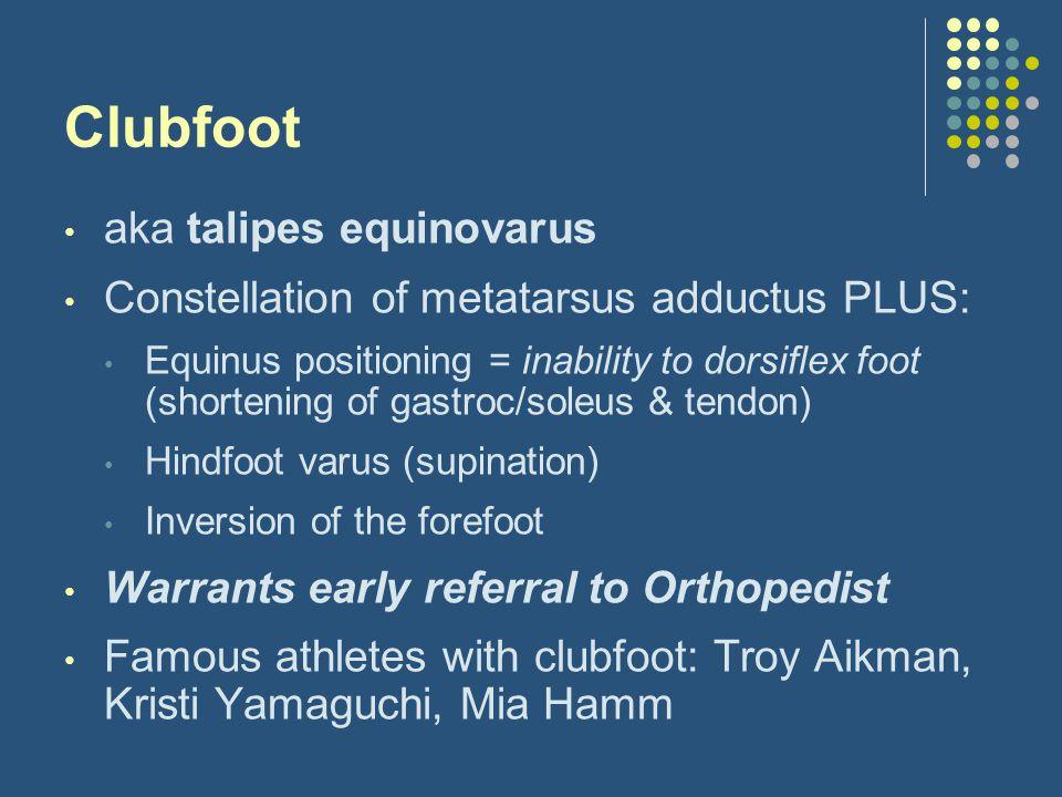 Clubfoot aka talipes equinovarus