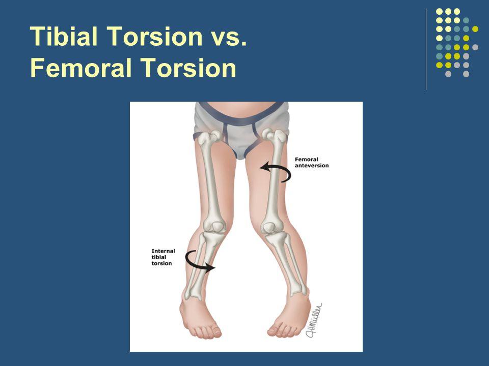 Tibial Torsion vs. Femoral Torsion