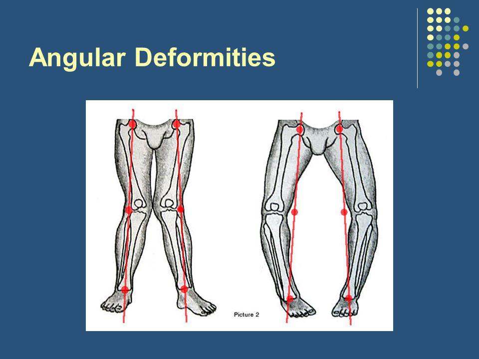 Angular Deformities