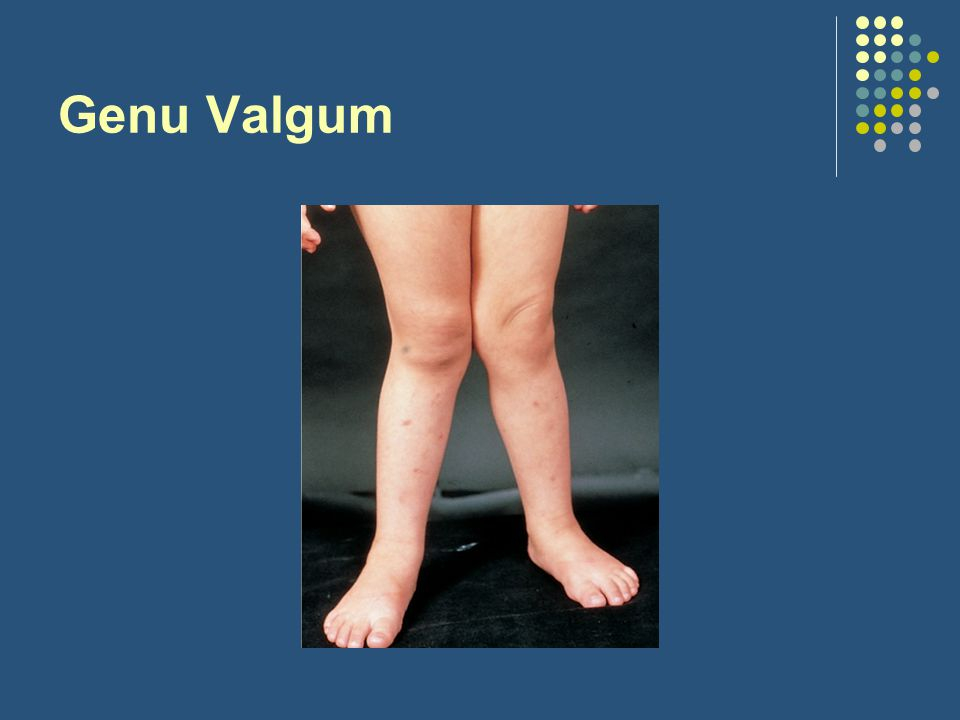 Genu Valgum Physiologic
