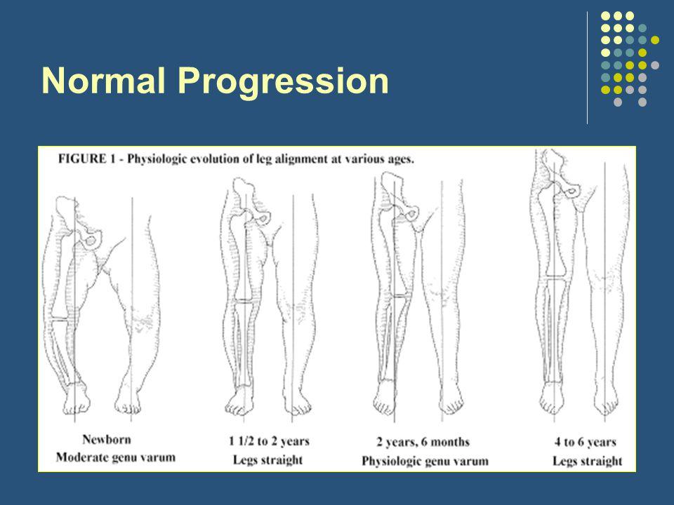 Normal Progression