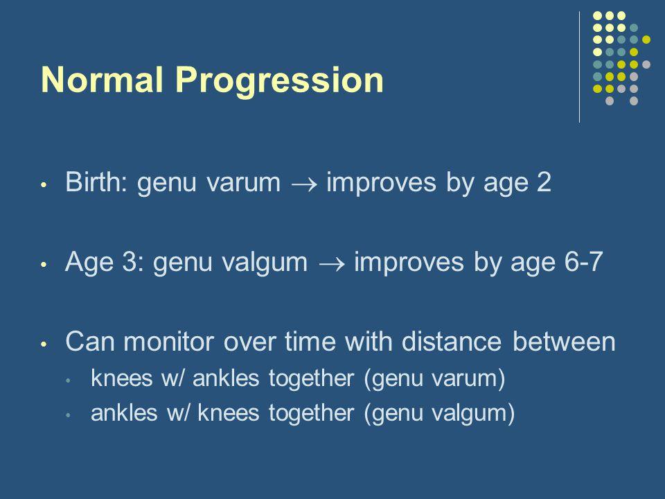 Normal Progression Birth: genu varum  improves by age 2
