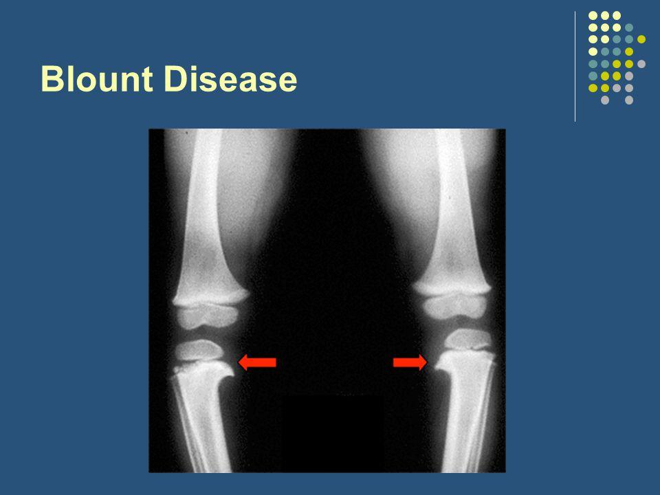 Blount Disease beak appearance of medial tibia