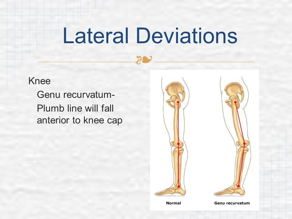 Lateral Deviations Knee Genu recurvatum-