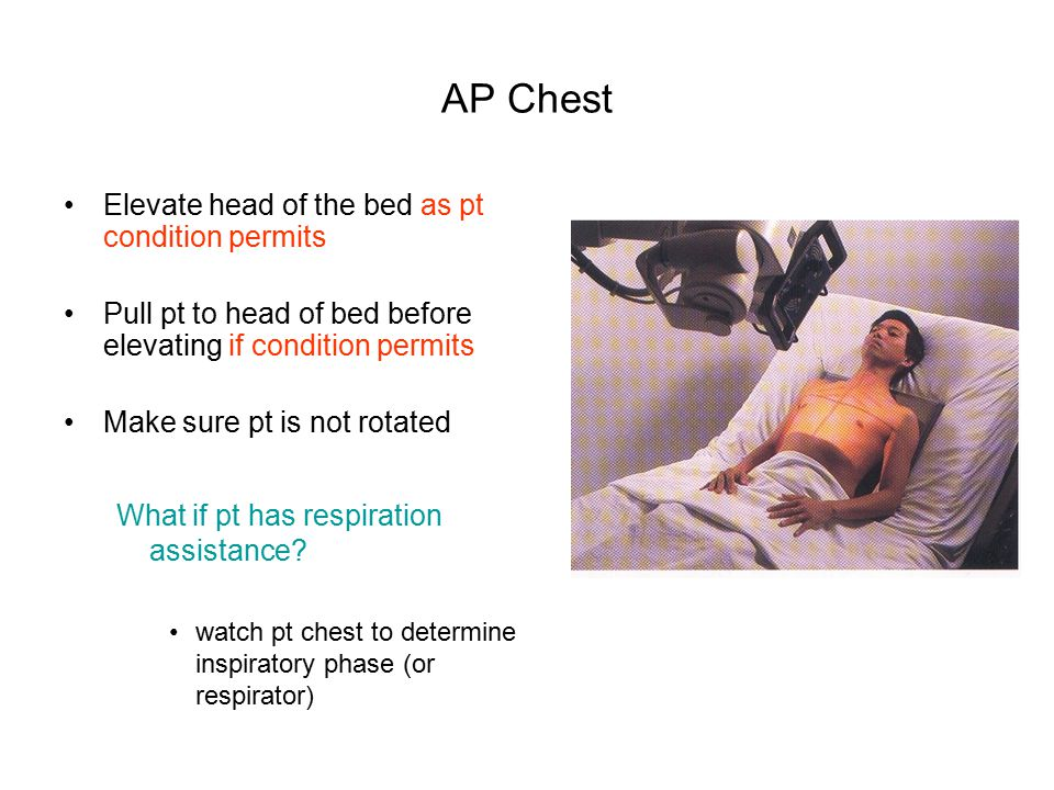 AP Chest Elevate head of the bed as pt condition permits