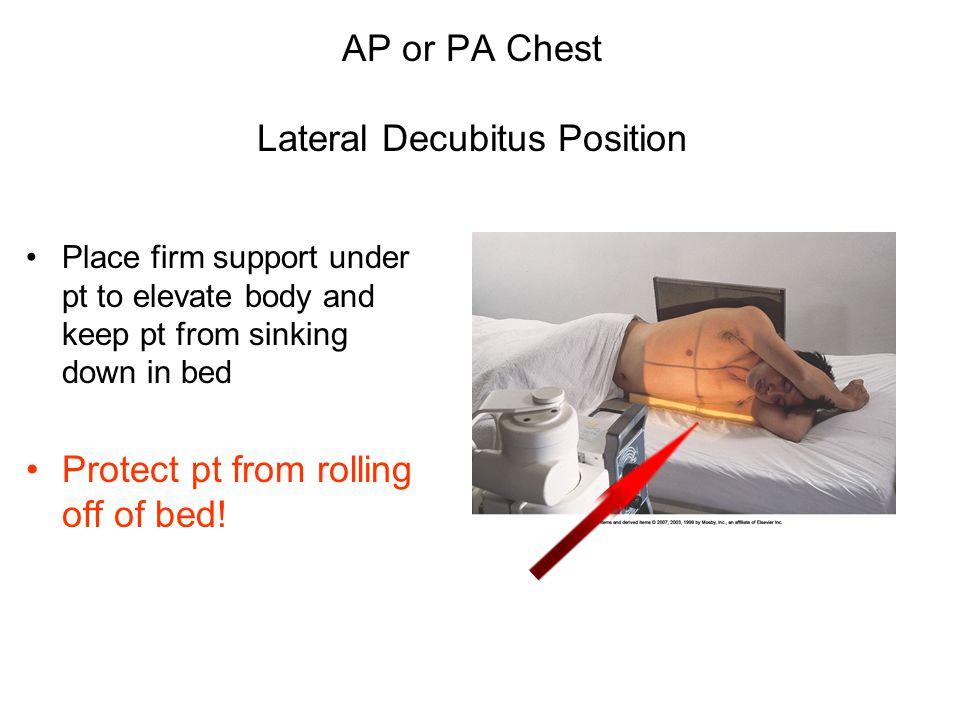 AP or PA Chest Lateral Decubitus Position