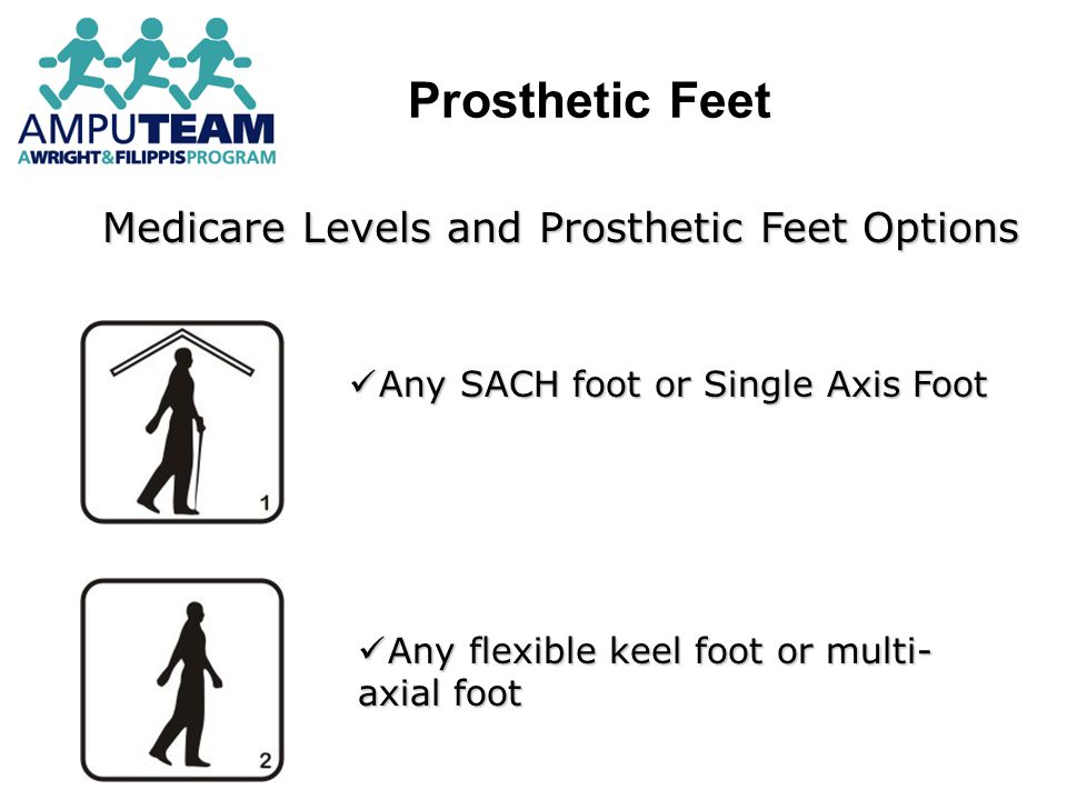 Medicare Levels and Prosthetic Feet Options