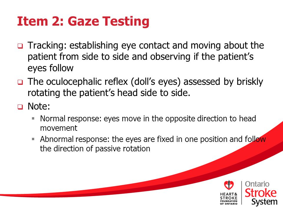 Item 2: Gaze Testing Tracking: establishing eye contact and moving about the patient from side to side and observing if the patient's eyes follow.