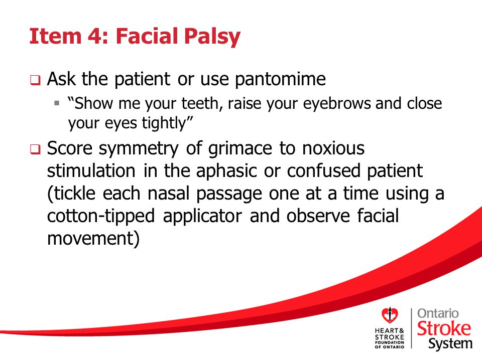 Item 4: Facial Palsy Ask the patient or use pantomime