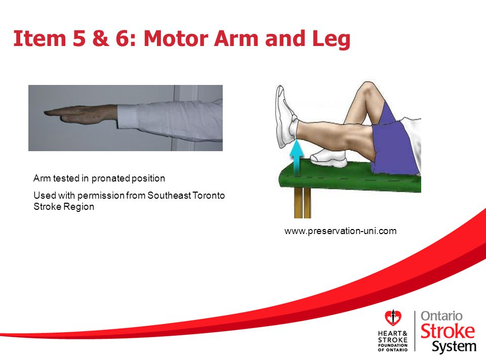 Item 5 & 6: Motor Arm and Leg
