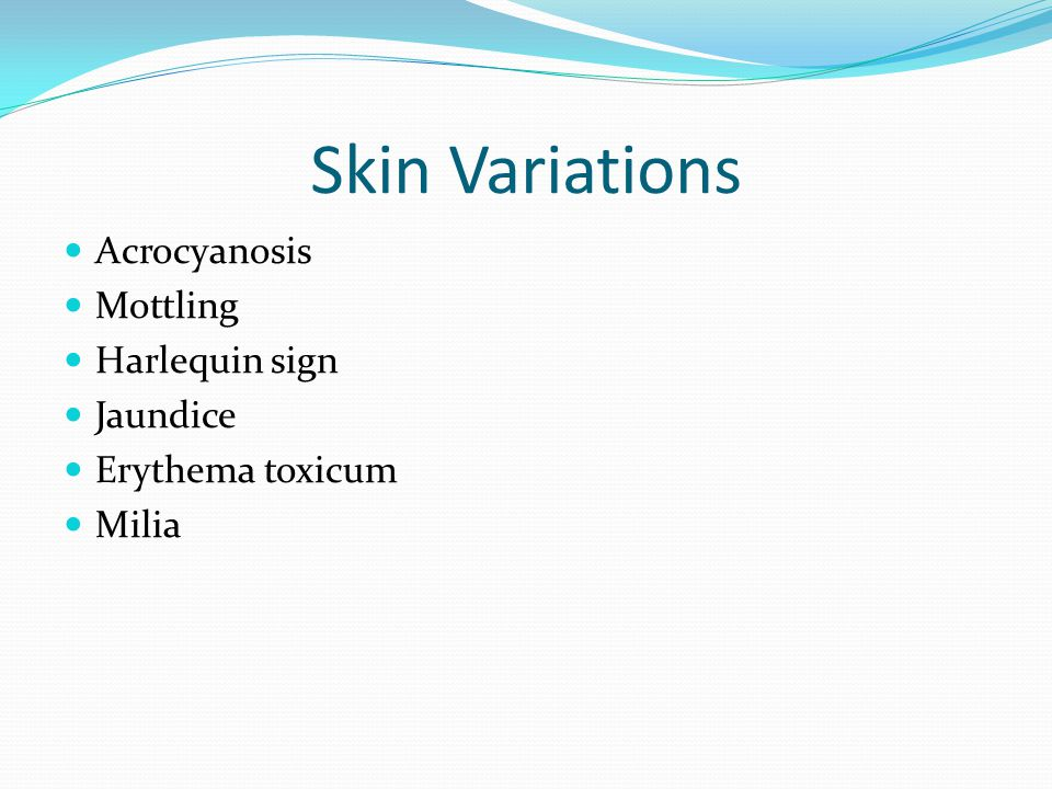 Skin Variations Acrocyanosis Mottling Harlequin sign Jaundice