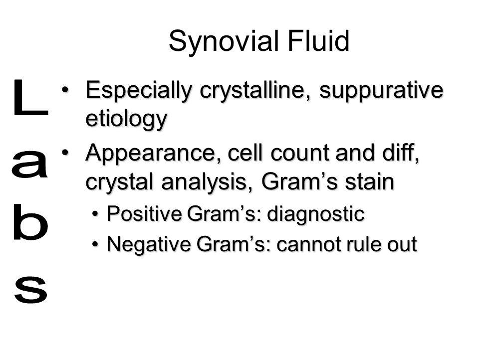 Synovial Fluid Especially crystalline, suppurative etiology