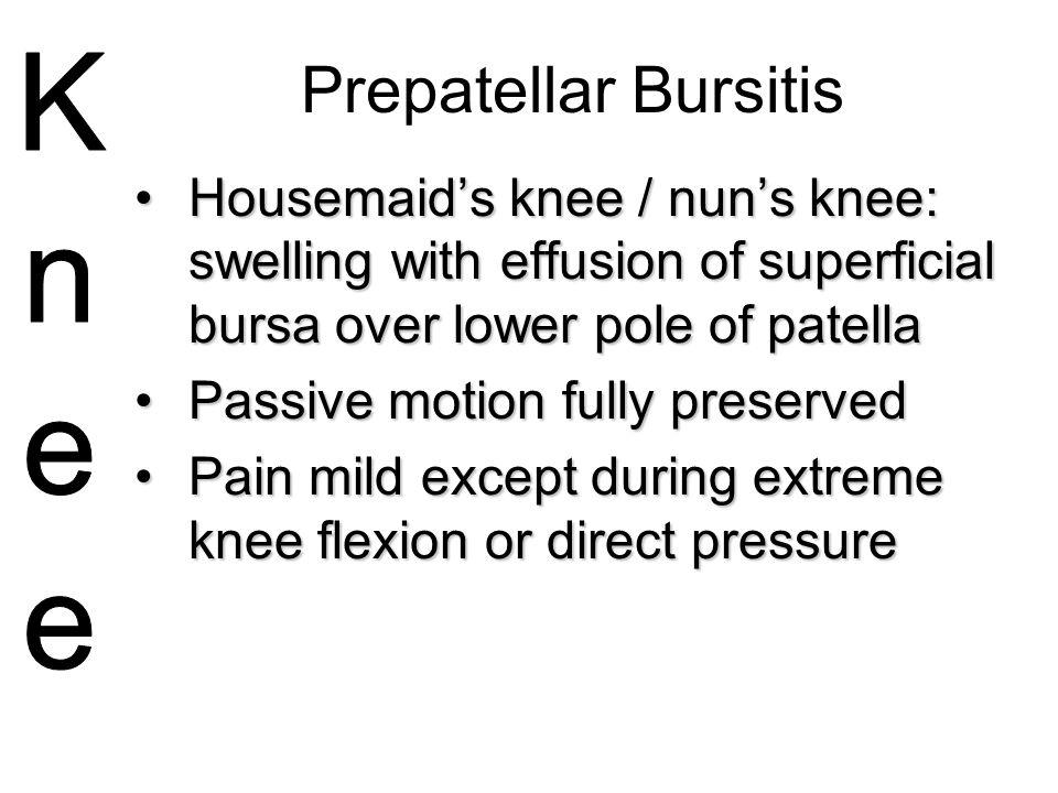 Prepatellar Bursitis Housemaid's knee / nun's knee: swelling with effusion of superficial bursa over lower pole of patella.