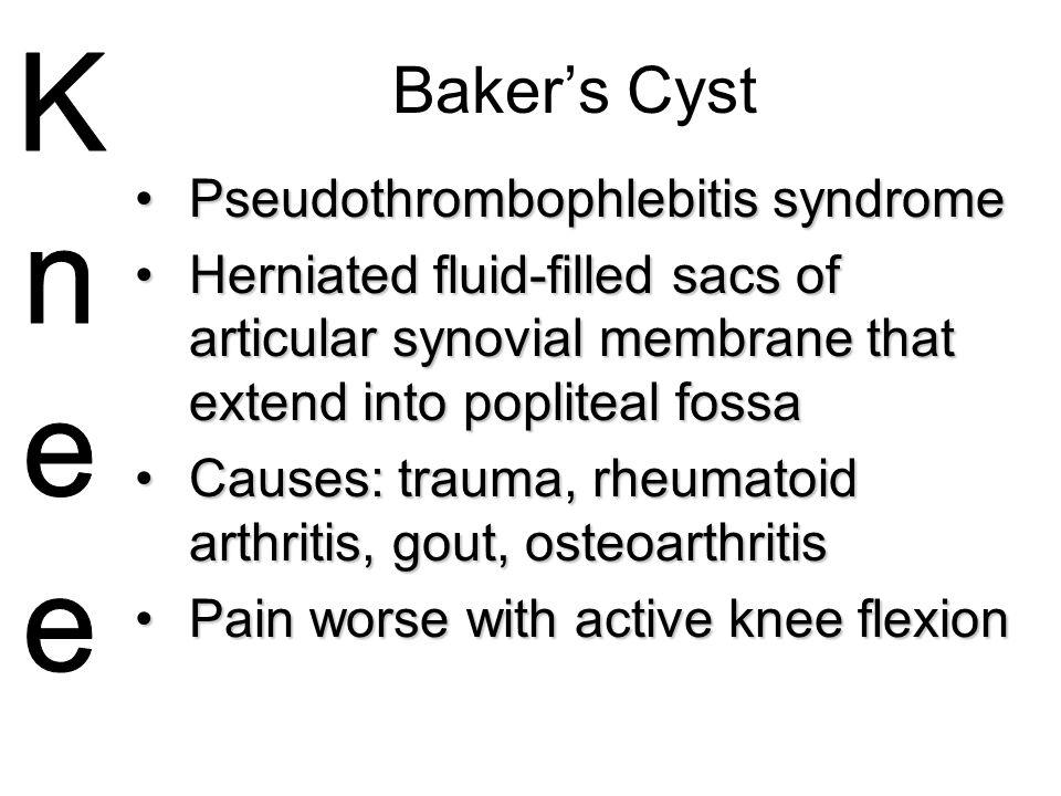 Baker's Cyst Pseudothrombophlebitis syndrome Knee