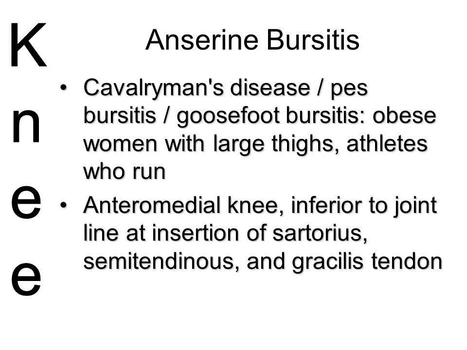 Anserine Bursitis Cavalryman s disease / pes bursitis / goosefoot bursitis: obese women with large thighs, athletes who run.