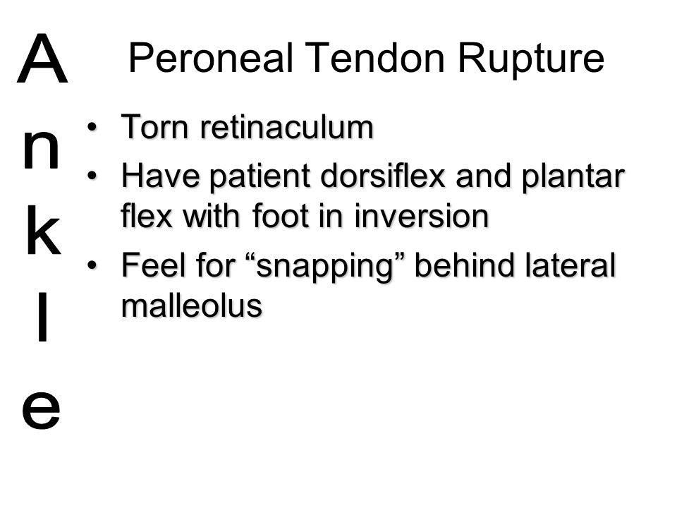 Peroneal Tendon Rupture