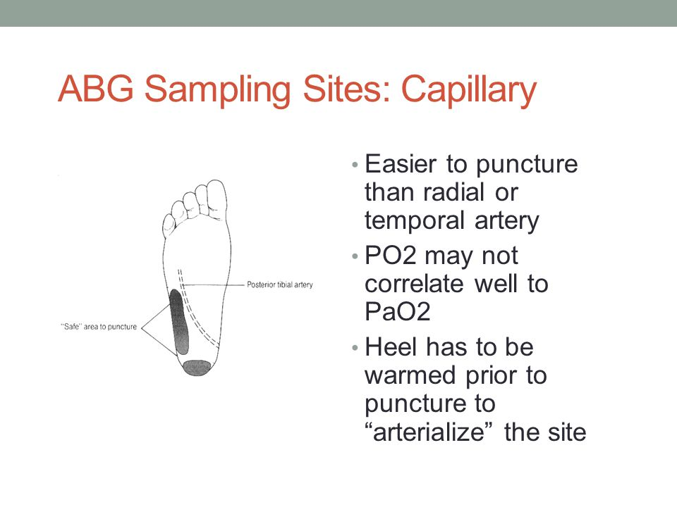 ABG Sampling Sites: Capillary