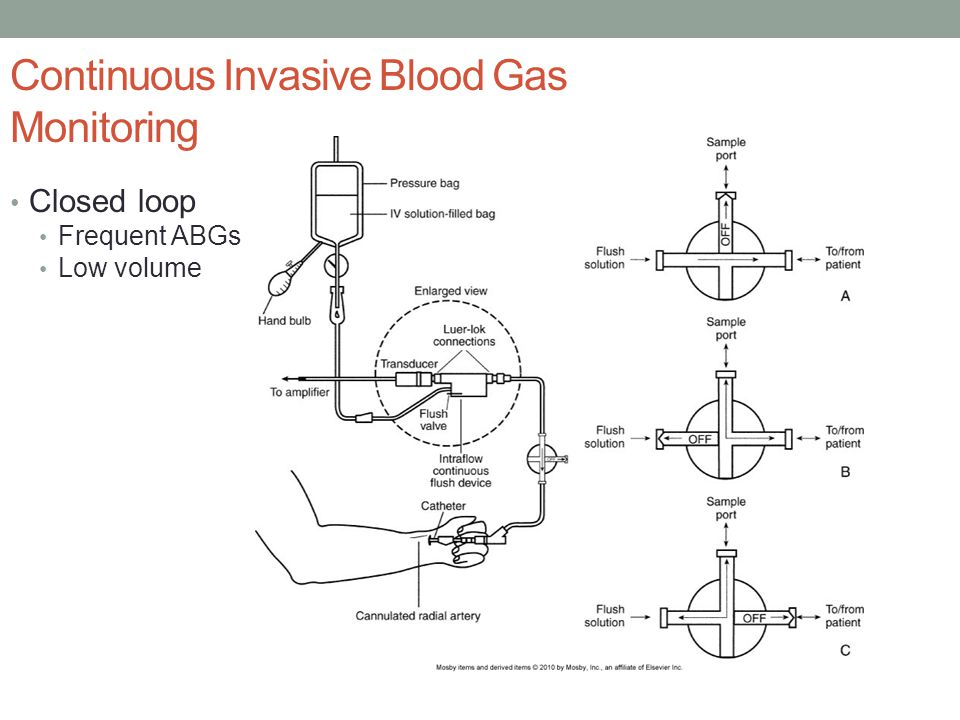 Continuous Invasive Blood Gas Monitoring