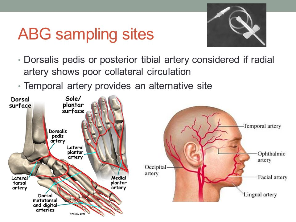 ABG sampling sites Dorsalis pedis or posterior tibial artery considered if radial artery shows poor collateral circulation.