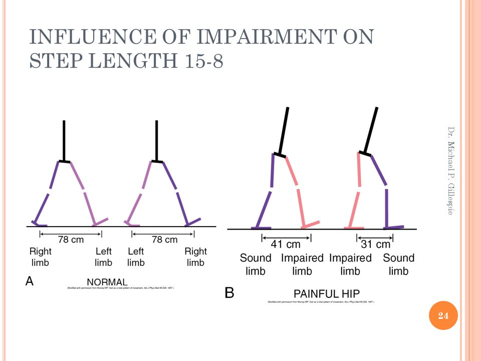 INFLUENCE OF IMPAIRMENT ON STEP LENGTH 15-8