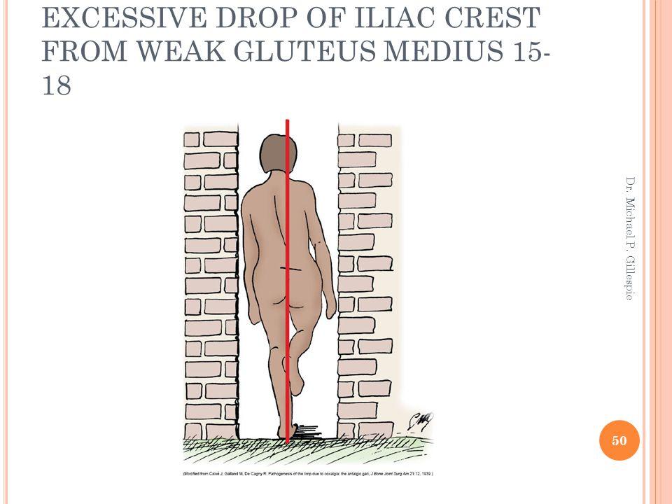 EXCESSIVE DROP OF ILIAC CREST FROM WEAK GLUTEUS MEDIUS 15-18