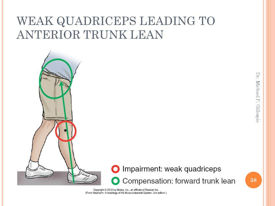 WEAK QUADRICEPS LEADING TO ANTERIOR TRUNK LEAN