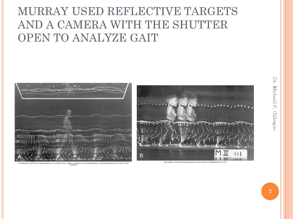 MURRAY USED REFLECTIVE TARGETS AND A CAMERA WITH THE SHUTTER OPEN TO ANALYZE GAIT