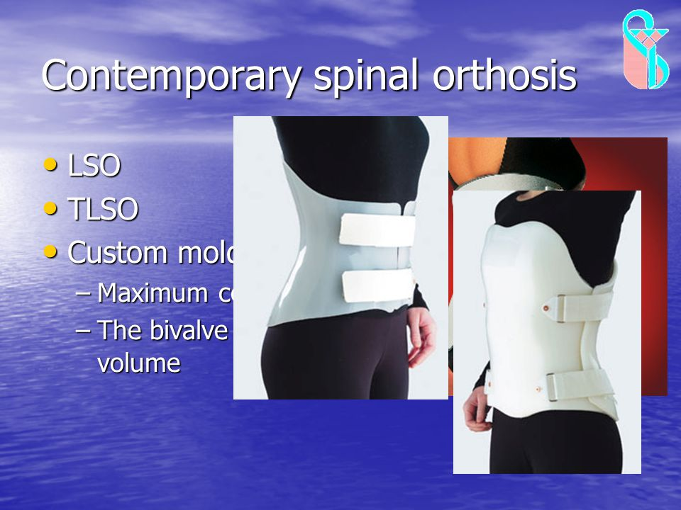Contemporary spinal orthosis