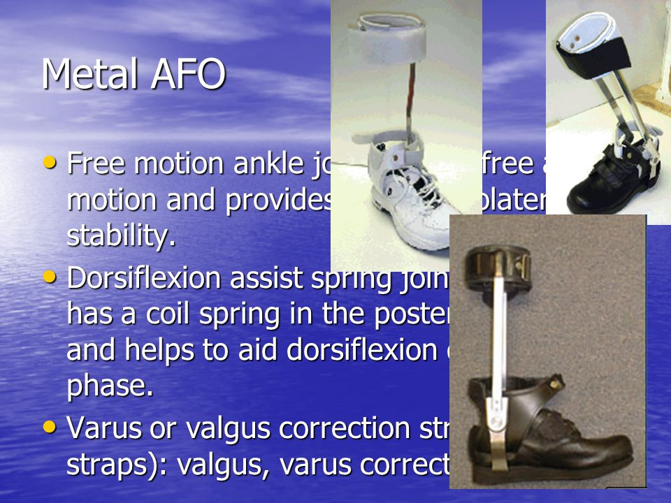 Metal AFO Free motion ankle joint: allows free ankle motion and provides only mediolateral stability.