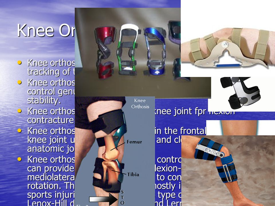 Knee Orthoses Knee orthoses for patellofemoral disorder: to control tracking of the patella during knee flexion and extension.
