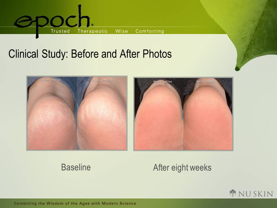 Clinical Study: Before and After Photos