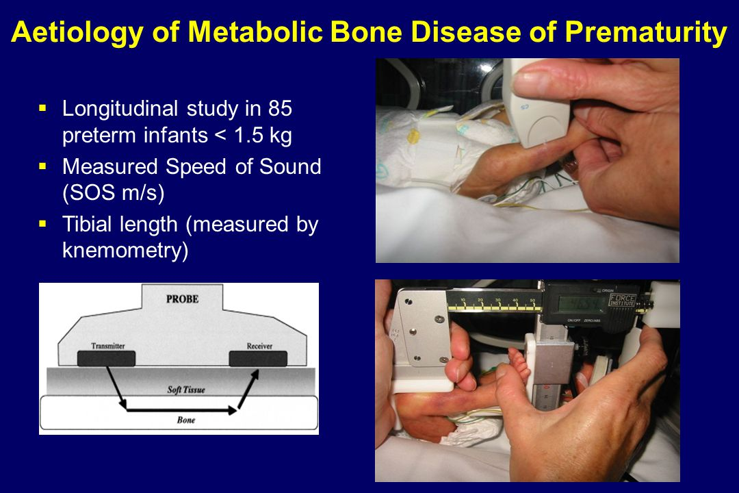 Aetiology of Metabolic Bone Disease of Prematurity