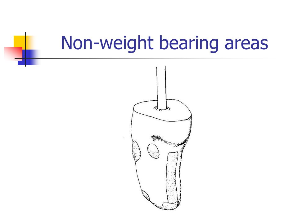 Non-weight bearing areas