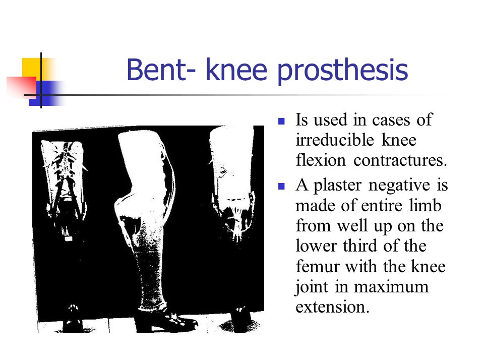 Bent- knee prosthesis Is used in cases of irreducible knee flexion contractures.