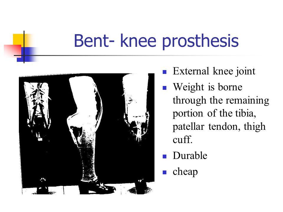 Bent- knee prosthesis External knee joint