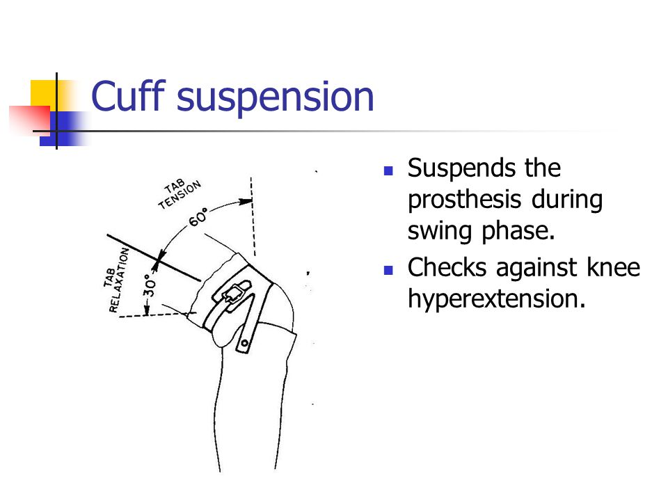 Cuff suspension Suspends the prosthesis during swing phase.