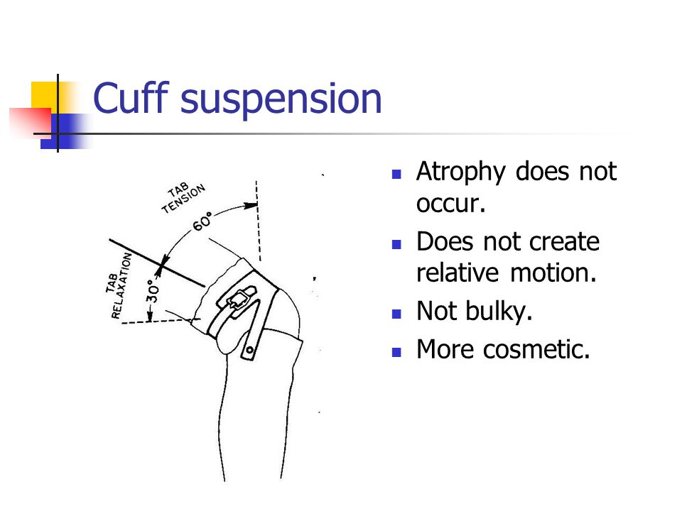 Cuff suspension Atrophy does not occur.