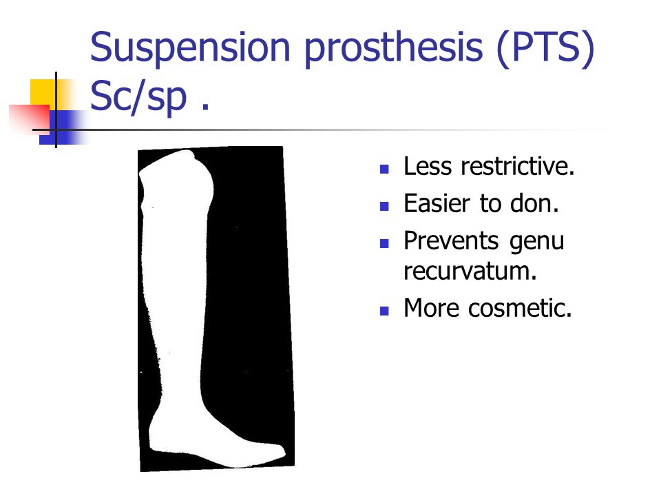 Suspension prosthesis (PTS) Sc/sp .