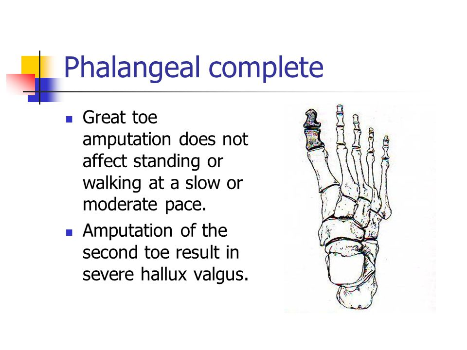 Phalangeal complete Great toe amputation does not affect standing or walking at a slow or moderate pace.