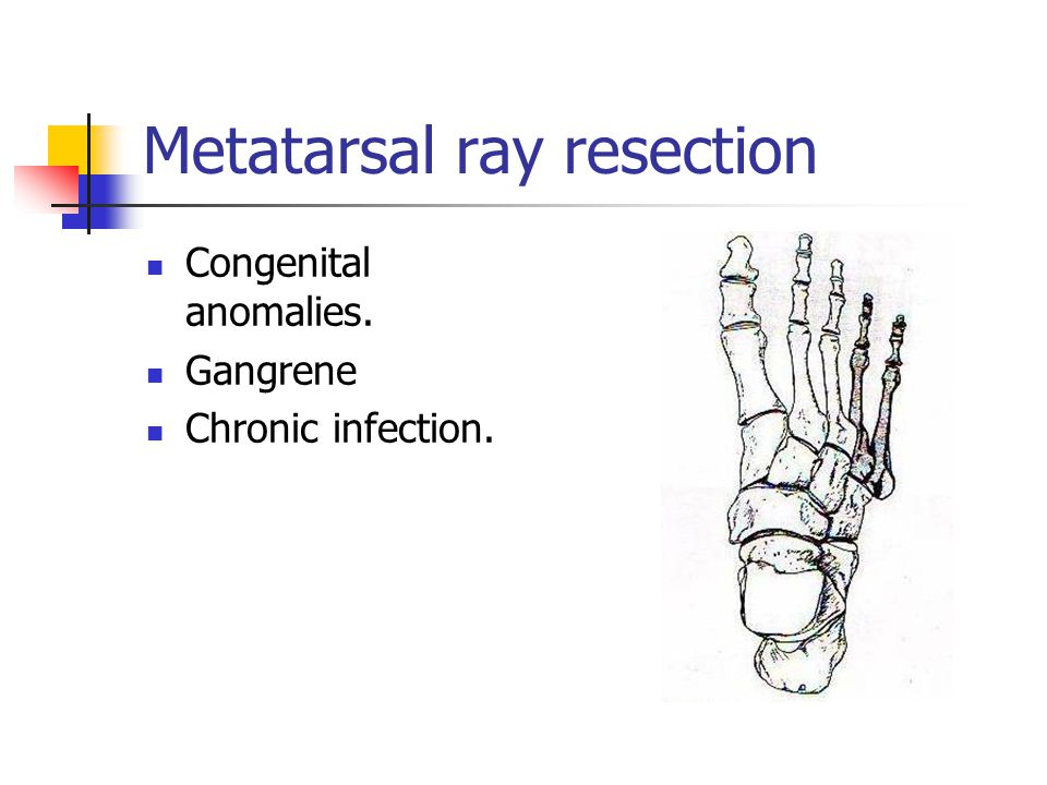 Metatarsal ray resection