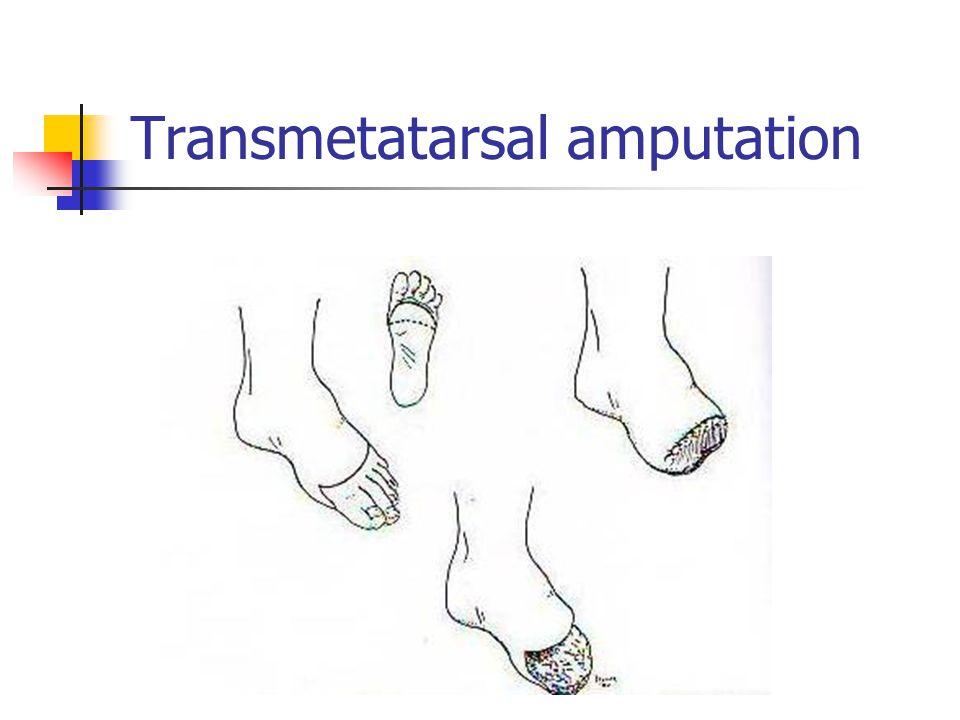 Transmetatarsal amputation