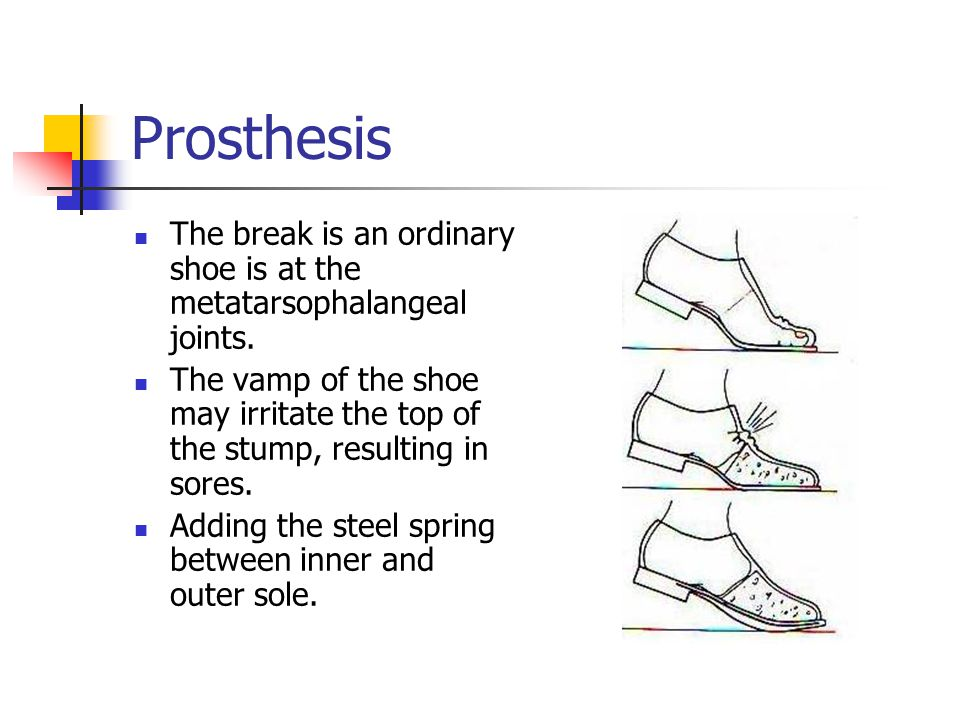 Prosthesis The break is an ordinary shoe is at the metatarsophalangeal joints.