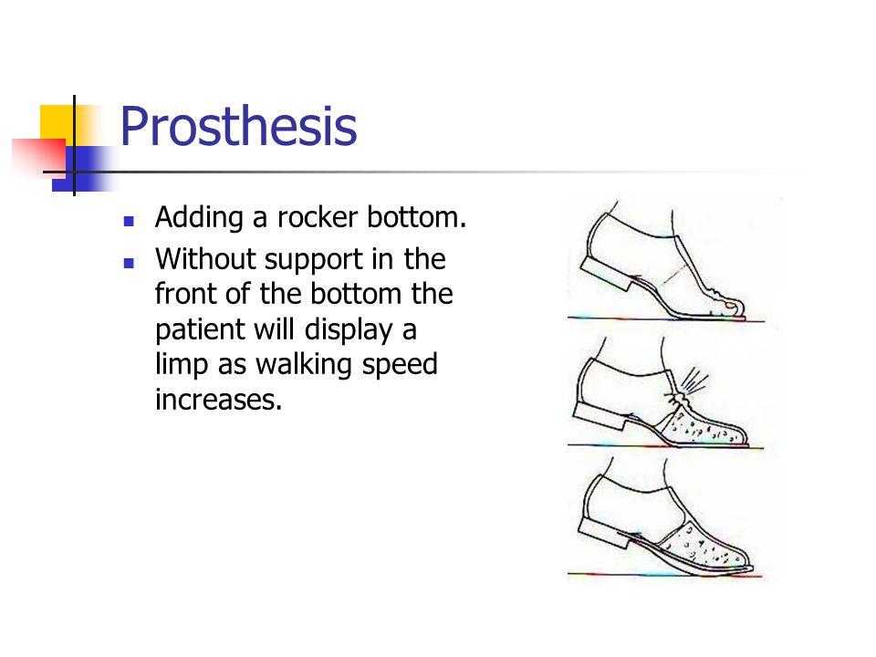 Prosthesis Adding a rocker bottom.